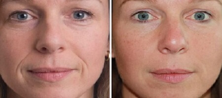 Honey Mask Before After